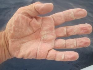 Takie były skutki największego błędu - nie zabrałem krążków na drążek wiosła i bardzo słona woda niszczyła mi skórę. Dostałem w skórę!
